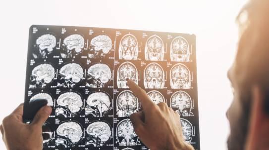 Obalamy mity: Rezonans Magnetyczny jak magiczna kula, wszystko Ci powie…